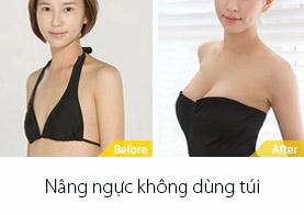 nâng ngực không dùng túi