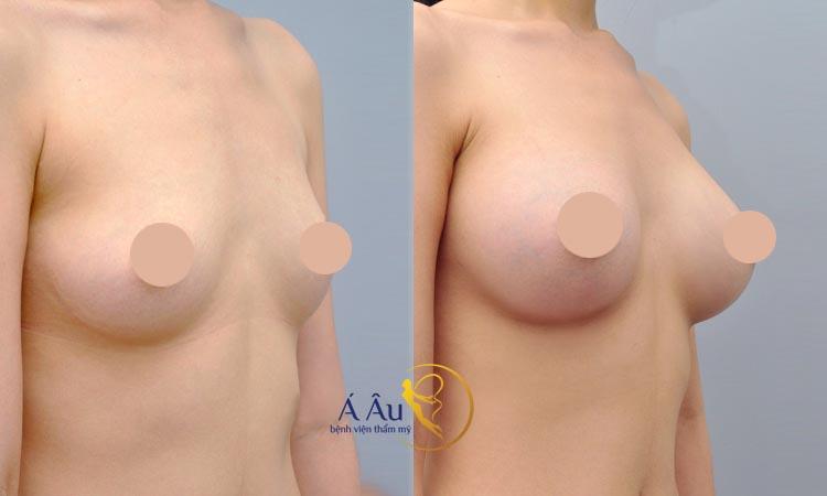 Hình ảnh nâng ngực nội soi tại Bệnh viện thẩm mỹ Á ÂU.