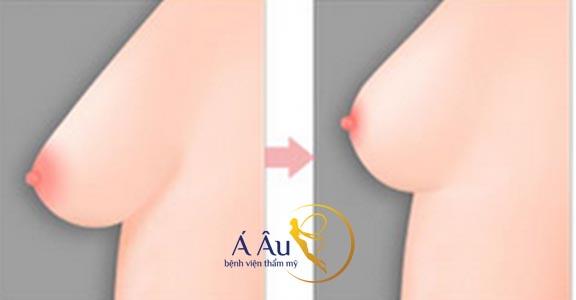 Kết quả nâng ngực được thực hiện tại Bệnh viện thẩm mỹ Á ÂU.