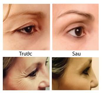 Hình ảnh trước và sau căng da