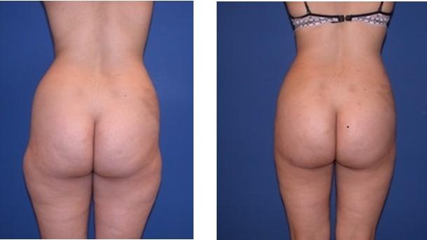 Kết quả trước và sau khi hút mỡ bụng, đùi, mông của chị Giang