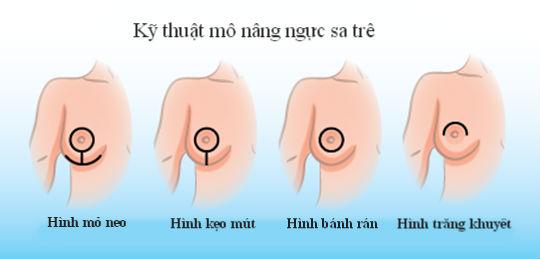 tại sao ngực chảy xệ