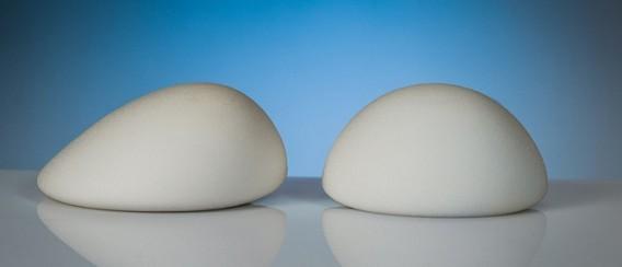 dịch vụ nâng ngực B-Lite chi phí bao nhiêu tiền